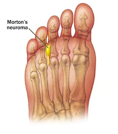 Mortons-Neuroma.jpg (388×440)