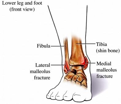 Almawi Ltd, The Holistic Clinic   Our Blog   Foot Health ...