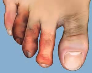 Almawi Ltd, The Holistic Clinic | Our Blog | Foot Health, Wellness ...