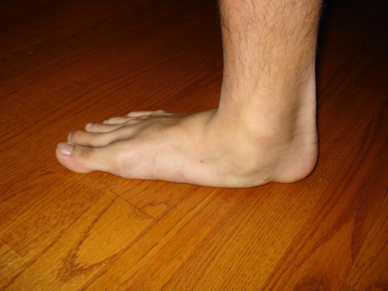 Almawi Ltd The Holistic Clinic Our Blog Foot Health