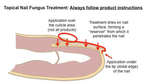 Almawi ltd the holistic clinic our blog foot health wellness fungal nail treatment diagram ccuart Images