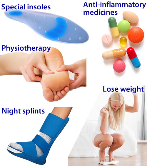 plantar fasciitis steroid injection recovery