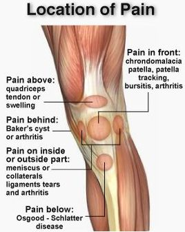 Almawi ltd the holistic clinic our blog foot health wellness and more for Exterior knee pain