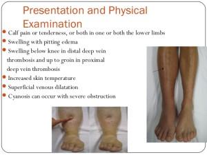 Examination for DVT