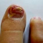An incident of Runner's Toe