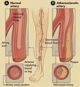 Normal vs Blocked Arteries