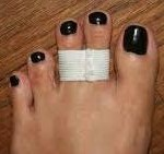 Taping of the toes helps