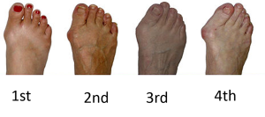 Bunion Severity Scale