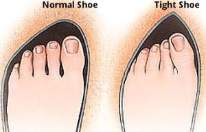 Normal vs Tight Shoe