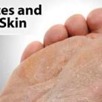 Diabetic Dry Skin